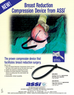 Breast Reduction Compression Device from ASSI